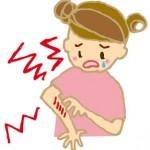 花粉症と蕁麻疹の症状の原因と関係、蕁麻疹の5つの対策法
