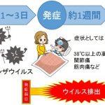 インフルエンザが流行!症状の解説とかかりやすい人と予防策